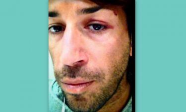 Θύμα ξυλοδαρμού ο Κωνσταντίνος Εμμανουήλ – Το μήνυμα του στο facebook