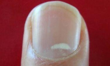 Τι είναι τα λευκά σημάδια στα νύχια μας