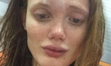 Άγριος ξυλοδαρμός μοντέλου της Vogue από τον σύντροφό της- Σοκαριστικές φωτογραφίες (pics)