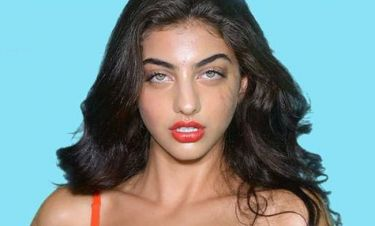 Ειρήνη Καζαριάν: «Είμαι κατά των πλαστικών επεμβάσεων...»