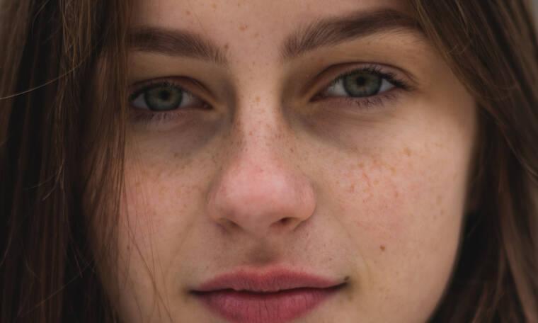 Ο γρήγορος κι εύκολος τρόπος να βγάλεις τα μαύρα στίγματα από τη μύτη (+video)